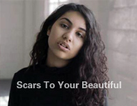 Scars To Your Beautiful-Alessia Cara